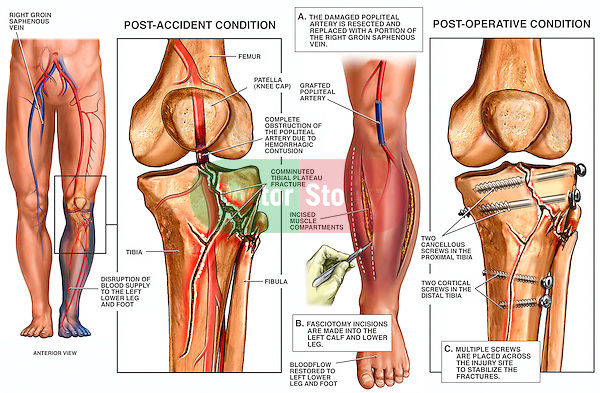 Knee Injury - Tibial Plateau Fractures with Fixation Surgery.