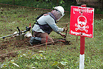 Land mines victimes. Khmer Rouge genocide during 1975-79 made millions of killings. Khmer Rossi, Killing fiels, emergency hospital, genocidio, cambodia, cambogia