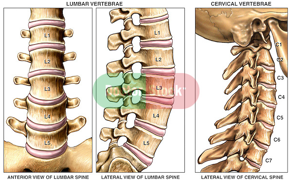 This anatomical chart features the normal anatomy of the lumbar and cervical spine (spinal column), including the vertebral bodies, transverse processes, laminae, spinous processes, and intervertebral discs.