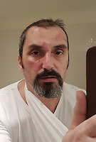 Pictured: Self portrait of photographer Dimitris Legakis showing his bruised face after being assaulted by man who smashed window of parked car in the early hours of Saturday, 17 December, 2016<br /> Re: Mad or Black Friday in Middlesbrough, England, UK