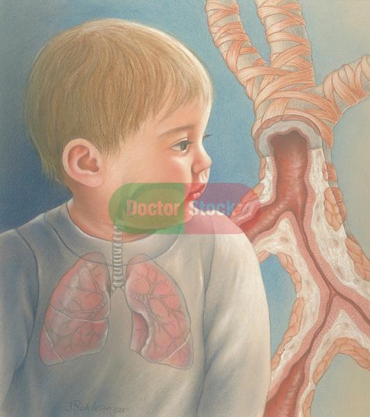 bronchial obstruction or asthma