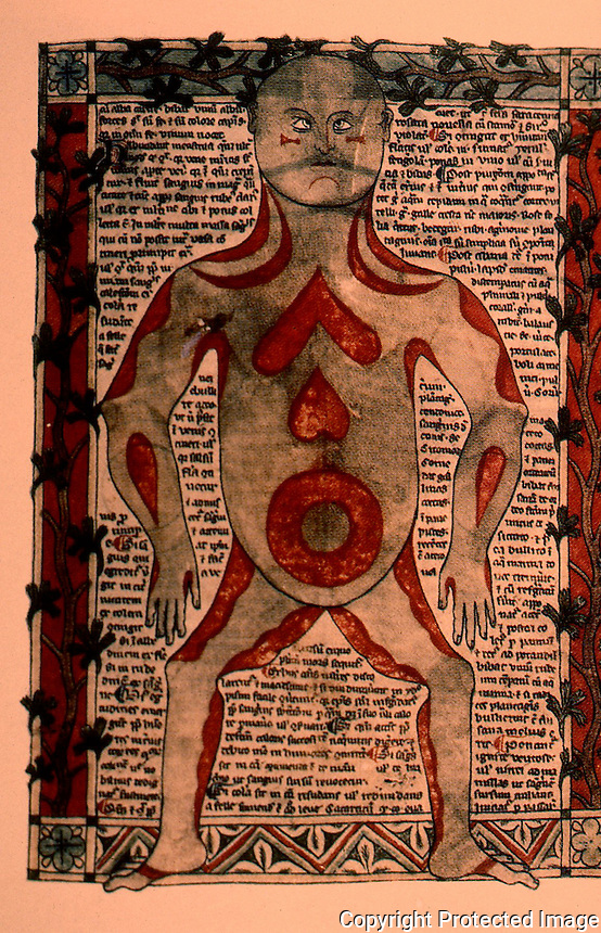 """Bubonic Plague:  Unidentified Anatomical Sketch . """" Reveals the fact that anotomical knowledge was then rudimentary at best.""""  SMITHSONIAN  Feb. '90."""