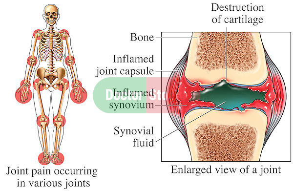 This stock image features an anterior skeletal orientation highlighting multiple regions where Rheumatoid Arthritis and joint pain can occur. ..Next to that image is a single detailed view of a typical joint with Rheumatoid Arthritis. Specifically labeled are: Joint pain occurring in various joints, destruction of cartilage, bone, inflamed joint capsule, inflamed synovium and synovial fluid.