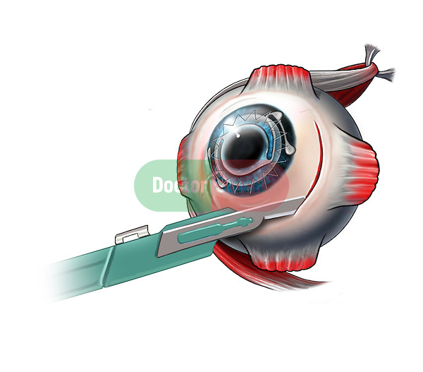 Medial concunctival incision made to reach the medial rectus muscle for the correction of estropia of the eye. The lens has been removed, an anterior chamber lens IOL has been placed and the cornea has been replaced.