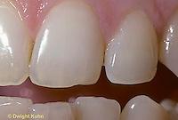 SN35-001f  Human teeth