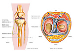 This medical exhibit diagram is an anatomical overview of the anatomy of the left knee and the relationships to the saphenous nerve. .The first image features an anterior skeletal view of the knee bones clearly labeling the nerves in the region. The second view is a superior view of the tibial plateau and surrounding soft tissues. The tibia, fibula, tibial plateau, saphenous nerve and its infrapatellar and medial crural branches are all labeled and identified..