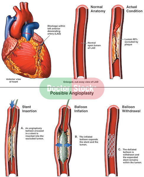 Coronary Artery Stenosis with Angioplasty