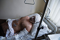 Igor Muryginn, a 42-year-old injured miner from the Zasyadko mine lies in a hospital in Donetsk, Ukraine, Wednesday, March 4, 2015.