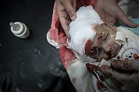 A Syrian child gets emergency medical assistance in a hospital in Tarik Al Bab neighborhood. The baby lost her eye by shrapnel during an aircraft strike on a highway outskirsts of Aleppo City.