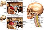 Left Temporomandibular Joint (TMJ) Injury.