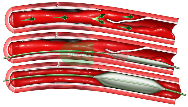 Heart Surgery - Blocked Coronary Artery Series with Balloon Angioplasty Repair. This full color medical illustration depicts a series of three cut-away views of a blocked, atherosclerotic coronary artery. The first picture of an artery shows the tunica intima partially detached from the wall of the artery. The second picture of an artery shows a deflated angioplasty balloon inserted into the artery. The third picture of an artery shows the balloon inflated.