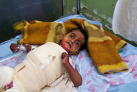 Baghdad, Iraq, March 22, 2003.yarmuk Hospital, Abbas Ali, 4, wounded by the US bombardment  suffers from extensive second degree burns on more tan 75% of his body