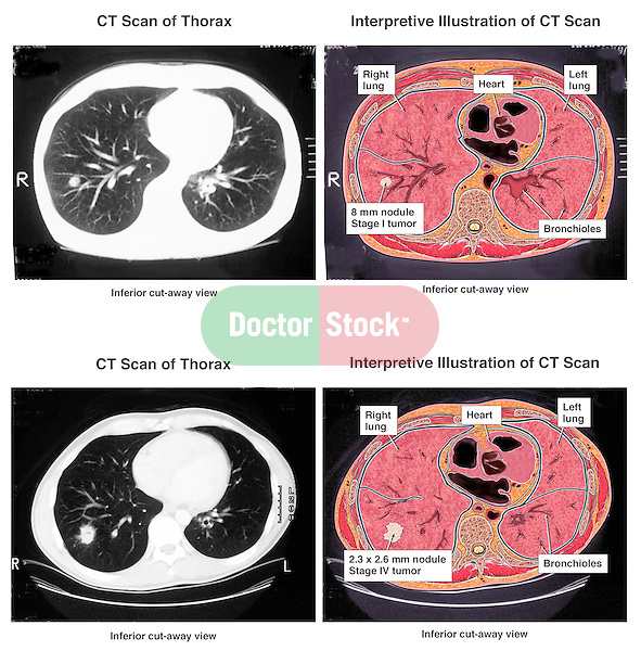 Progression of Metastatic Lung Cancer. This full color medical exhibit depicts the progression of lung cancer shown in axial cross section. This exhibit consists of two MRIs showing the progression of a tumor in the lungs. Each MRI is paired up with an illustrative interpretation of the MRI.