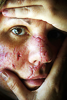 Victim of Domestic violence who had 44 stitches in her face after being assaulted by her partner.