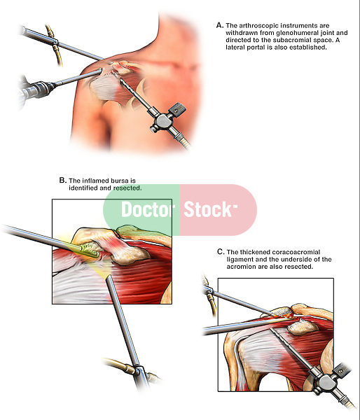 Rotator Cuff Shoulder Ligament Injury and Surgical Repair. This full color custom medical exhibits explains the arthroscopic surgery performed to eliminate subacromial compression. The procedure starts with the insertion of arthroscopic instruments through the skin into the right subacromial space. The next steps are shown on musculoskeletal views of te shoulder so that the removal of the inflamed bursa, thickened coracoacromial ligament and bone spurs can be seen clearly.