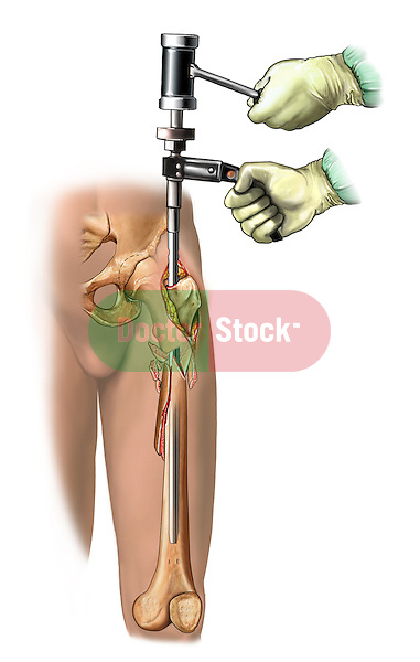 Tibial Fixation; this medical illustration illustrates tibial fixation.