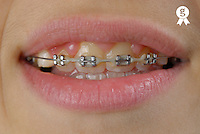 Boy's mouth wearing orthodontic braces on teeth (Licence this image exclusively with Getty: http://www.gettyimages.com/detail/95794842 )