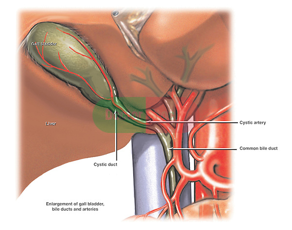 This full color medical-legal chart demonstrates the relationship of the gallbladder to the cystic duct, common bile duct and cystic artery. Labels identify the gallbladder, cystic duct, common bile duct, cystic artery and liver.