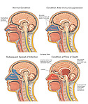This medical exhibit shows four cut-away views of the head and brain illustrating the progression of a sinus infection into the brain. ..The images include, normal anatomy, onset of infection to the frontal sinuses,  penetration of the infection through the thin bone layers of the skull into the brain cavity, and the final spread of infection throughout the cranium resulting in brain edema and hemorrhage. ..
