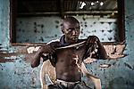 CAR, Bangui: Dialo Amidou, 23 years old has been burnt when his house was put in fire by the anti-balaka in December 2013. 16 April 2016<br /> <br /> RCA, Bangui: Dialo Amidou, 23 ans a été brulé quand sa maison a été incendié par des anti-balaka au mois de décembre 2013. 16 avril 2016