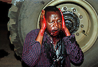 An African National Congress (ANC) supporter who was shot through his head by an Inkatha Freedom Party (IFP) hostel dweller.