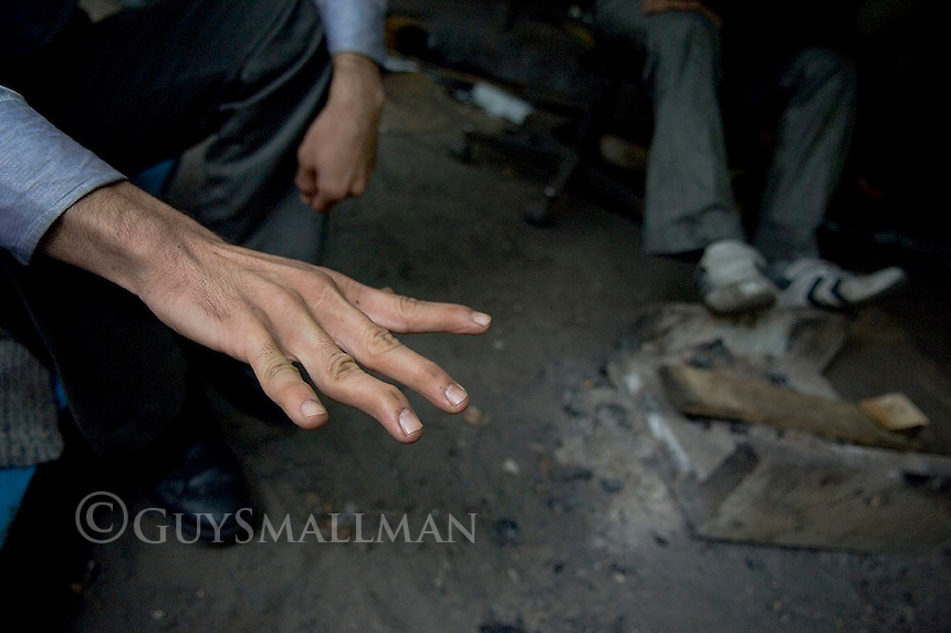 Police continue to guard the clearance of the Calais refugee 'jungle' camp as refugees from Iraq and Sudan remain destitute on the streets of the port town. An Iranian refugee shows his deliberatly broken fingers.