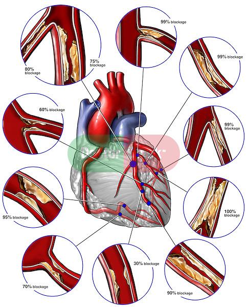Critical Coronary Artery Disease