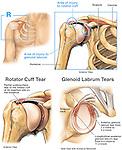 Shoulder Injury - Torn Glenoid Labrum and Rotator Cuff Tendon Tears.