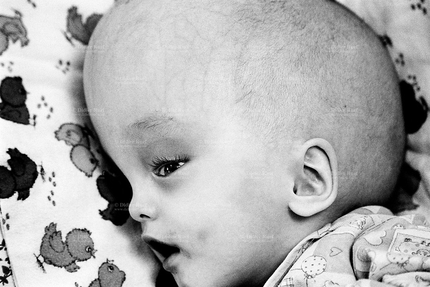 Kazakhstan. Semipalatinsk. Child House Orphanage. Adil Zheliayev suffers from an hydrocephal disease. He is 18 months old and was born near the Semipalatinsk Polygon ( called today National Nuclear Center of Kazakhstan). Adil Zheliayev is a second (or third) generation victim of the 456 atomic testing - 116 atmospheric, 340 underground - from 1949 to 1989. The regions high frequency of  diseases is primarily due to fallout from nearby nuclear test sites. The causes for hydrocephalus in humans are both genetic and environmental. Hydrocephalus, also known as Water on the Brain, is a medical condition. People with hydrocephalus have an abnormal accumulation of cerebrospinal fluid (CSF) in the ventricles, or cavities, of the brain. This may cause increased intracranial pressure inside the skull and progressive enlargement of the head, convulsion, and mental disability. Hydrocephalus can also cause death. Adil Zheliayev shows the human and environmental effects of nuclear radiation, contamination and pollution from atomic tests programs of the former Soviet Union. Semey is the Kazakh name for Semipalatinsk and is located in the Eastern Kazakhstan Province. © 2008 Didier Ruef