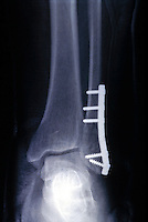 X-ray of a plate fitted for ankle fracture. This image may only be used to portray the subject in a positive manner..©shoutpictures.com..john@shoutpictures.com