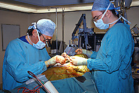 Carotid endarterectomy surgery. The surgeon is now suturing the incision in the neck...©shoutpictures.com.john@shoutpictures.com
