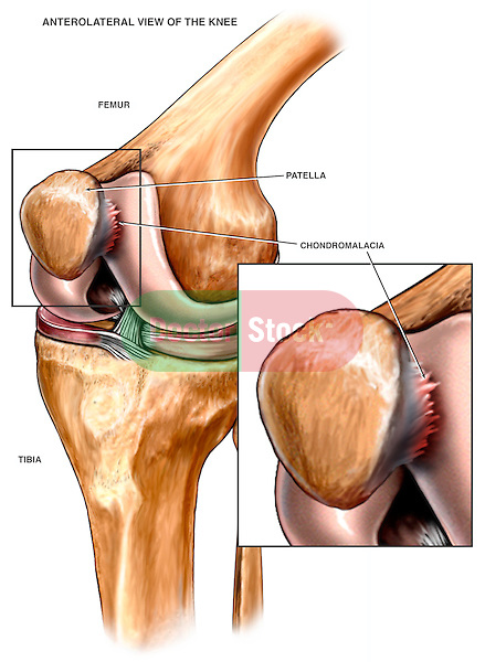 This stock medical-legal illustration pictures an anterolateral (front, outside) view of the left knee joint showing chondromalacia where the patella articulates with the femoral surface. Chondromalacia is a surface defect on the articular cartilage of a joint, usually caused by trauma.