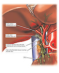 Gallbladder Removal - Post-operative Cholecystectomy with Leaking Bile. Dramatically depicts a post-operative complication following cholecystectomy surgery. In an enlarged view of the biliary region and adjacent anatomy beneath the liver, a misplaced clip in the fibrofatty tissue covering the common bile duct causes a tear in the duct itself. In turn, bile flows into the abdominal cavity from the damaged duct causing inflammation of the surrounding tissues and structures.
