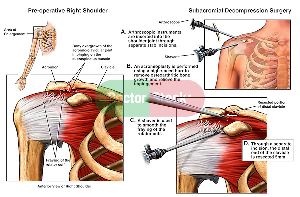 Shoulder Impingement Injury with Arthroscopic Surgery. Accurately depicts the pre-operative traumatic spurring to the undersurfaces of the acromioclavicular (ac) joint space with several steps of the standard arthroscopic decompression surgery and removal of impingement.