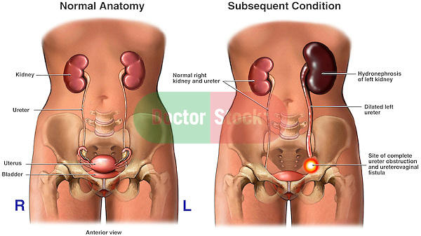 This medical exhibit features side by side anterior comparisons of normal female urinary anatomy with one revealing Post-operative Obstruction of the Distal Left Ureter with Subsequent Left Side Kidney Hydronephrosis and Damage