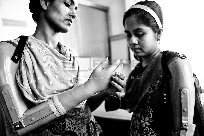 Mariyam and Laboni with their artificial hand, Savar, Bangladesh.  Mariyam had her right arm amputated to free her from the rubble when she was rescued nearly 72 hours after the building collapsed. Laboni had her left arm amputated inside the rubble when she was rescued nearly 36 hours after the building collapsed. Savar, near Dhaka, Bangladesh