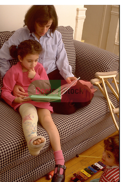 mother reads with young daughter with broken leg in cast