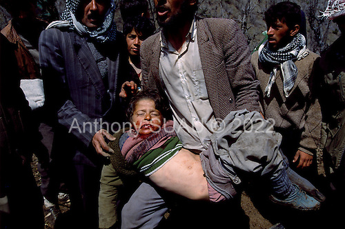 Isikveren, Turkey.April 12, 1991..A child hit by a large relief air-dropped food package into a Kurdish refugee camp. The camp housed an estimated 300,000 refugees who fled Iraqi (Saddam Hussein's) post Gulf war persecution...In the wake of the 1991 Persian Gulf War rebellions in Southern and Northern Iraq occurred. The uprising in the Kurdish areas of Northern Iraq broke out in March, sparked by demoralized Iraqi Army troops returning from it's defeat against United States lead coalition forces in southern Iraq and Kuwait. Although they presented a threat to Iraqi President Saddam Hussein?s regime, his Iraqi Republican Guard suppressed the rebellion with massive force, as the expected US intervention never materialized. ..The faltering rebellion fueled a terrified mass exodus. The U.N. High Commissioner for Refugees called it the largest in its 40?year history. During March and early April, nearly two million of Iraqis escaped from strife-torn cities to the mountains along the northern borders and into Turkey and Iran. Their exodus was sudden and chaotic, with thousands fleeing on foot, on donkeys, or crammed onto open-backed trucks and tractors. Thousands, many of them children, died or suffered injury along the way, primarily from adverse weather, unhygienic conditions and insufficient food and medical care. Some were killed by army helicopters, which deliberately strafed columns of fleeing civilians. Others were injured when they stepped on land mines planted by Iraqi troops near the Iran border during the war. Greenpeace has estimated that at one point in 1991, an estimated 2,000 Kurds were dying every day..