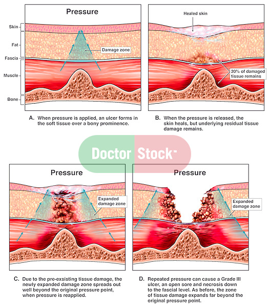Development of  Pressure Sores (Ulcers, Bedsores).