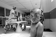Children suffering burns from a kitchen fire. Bogota, Colombia  - Child labor as seen around the world between 1979 and 1980 – Photographer Jean Pierre Laffont, touched by the suffering of child workers, chronicled their plight in 12 countries over the course of one year.  Laffont was awarded The World Press Award and Madeline Ross Award among many others for his work.