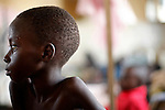 © Remi OCHLIK/IP3, Rutshuru , Republique Democratique du Congo, le 26 novembre 2008 - Hopital de Rutshuru, Service de chirurgie. Les blesses des combats du Nord Kivu y sont soignés pour diverses blessures...Rutshuru hospital, chirurgical district. Refugees who have been hurt during fightings, are cured