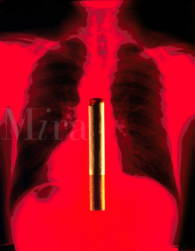 Photo illustration depicting the connection between smoking and lung cancer.
