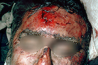 Head and facial injuries, including cheekbones, lips and blackeyes. This image may only be used to portray the subject in a positive manner..©shoutpictures.com..john@shoutpictures.com