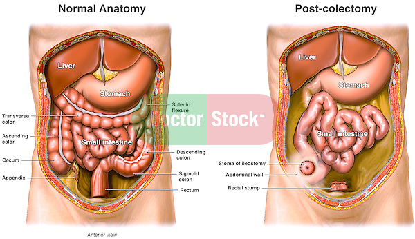 Complete Colectomy (Colon Removal) with Ileostomy Surgery. This medical exhibit compares normal abdominal anatomy with a post-colectomy appearance.  The post-operative condition shows the large colon having been removed, with a residual rectal stump.  This image also indicates a small portion of the small intestine has been passed through the abdominal wall to create a ileostomy stoma.