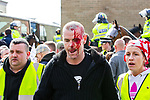 © Joel Goodman - 07973 332324 . 02/04/2011 . Blackburn , UK . A man wearing an EDL earring , with blood pouring down his face , is escorted to safety for medical treatment . The English Defence League ( EDL ) hold a demonstration in Blackburn . Photo credit : Joel Goodman