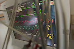 Life support monitor