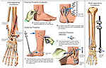 This multi-image surgical exhibit features elements associated with the open reduction, internal and external fixation of multiple fractures to the tibia and fibula of the right lower leg. Specific images show:..1. Pre-operative fractures...2. Lateral incision with placement of plate and multiple screws...3. Medial incision with placement of additional screws...4. Final post-operative view showing the post-operative appearance with all internal hardware and an external fixator. ..