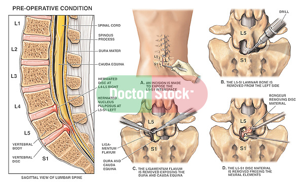 Spinal Surgery - L4-5, L5-S1 Lumbar Disc Herniations with Laminectomy and Discectomy (Diskectomy).