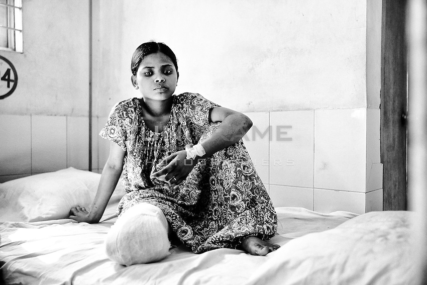 Bangladeshi garment worker Aroti, 16, who worked on the 5th floor of Rana Plaza, at Enam Medical College Hospital, Savar, Bangladesh. Aroti had her right leg amputated in hospital when she was rescued from the rubble nearly 72 hours after the building collapsed. Savar, near Dhaka, Bangladesh