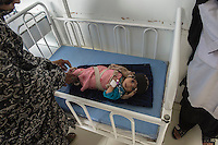 The children's ward in Farah hospital, Farah province western Afghanistan. 18-1-14 A child suffering from malnutrition.